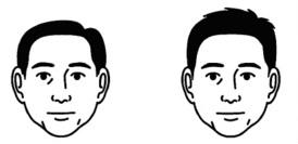側頭部(サイド)と頭頂部(トップ)の厚みの比率