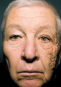 トラック運転手を28年した人がサイドガラスより直射日光を浴び続け、顔の左半分が老化促進している