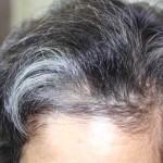 50代アラフィフ男のアンチエイジング:白髪対策
