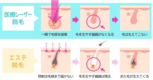 医療レーザー脱毛とフラッシュ脱毛の違い