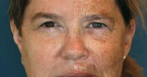 男性の顔のシミの原因と予防する方法とは?
