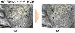 肌の奥の隠れジミの変化例